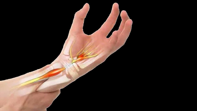 Carpal Tunnel Syndrome, CTS, Hypothyroidism, Diabetes, Rheumatoid Arthritis, Electrophysiological, Cervical Spondylosis, Nerve Root Impingement, Heredity, Wrist fractures, Alcoholism, Obesity, Muscle, Nerve, Muscle and Nerve Journal, Siddharth M Shah, Raheja Hospital, Fortis