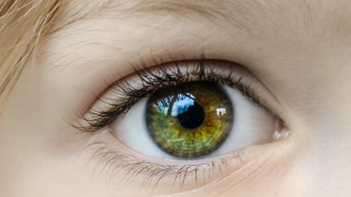 Red eye, Ophthalmology, COVID-19, Conjunctivitis, Prof Stephanie Watson