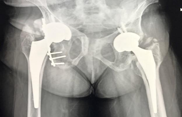 Hip replacement, Ankylosing spondylitis, BGS Gleneagles, Global Hospital, Basavraj CM, Senior Joint Replacement Surgeon, BGS Gleneagles Global Hospital, Anti-TNF, Medication