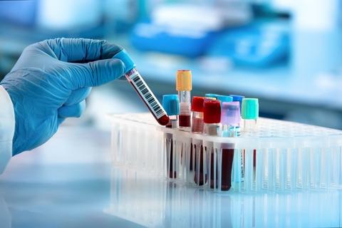 Sanghi Medical Centre starts antibody testing for COVID-19