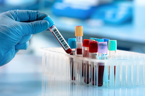 IMMUCARE, India's first exclusive diagnostic lab for autoimmune diseases, launched in Kochi