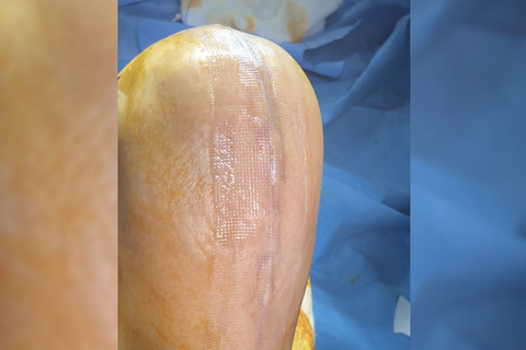 Technological advancements in wound closure management