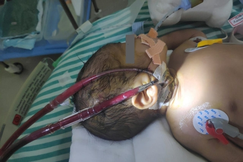 Narayana Health City saves a baby born with multiple life-threatening conditions using ECMO