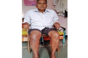 SaiShree Hospital first in Maharashtra to perform surgery using butterfly prosthesis technique